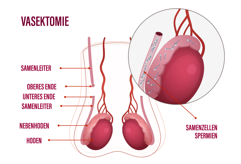 Visuelle Darstellung einer Vasektomie